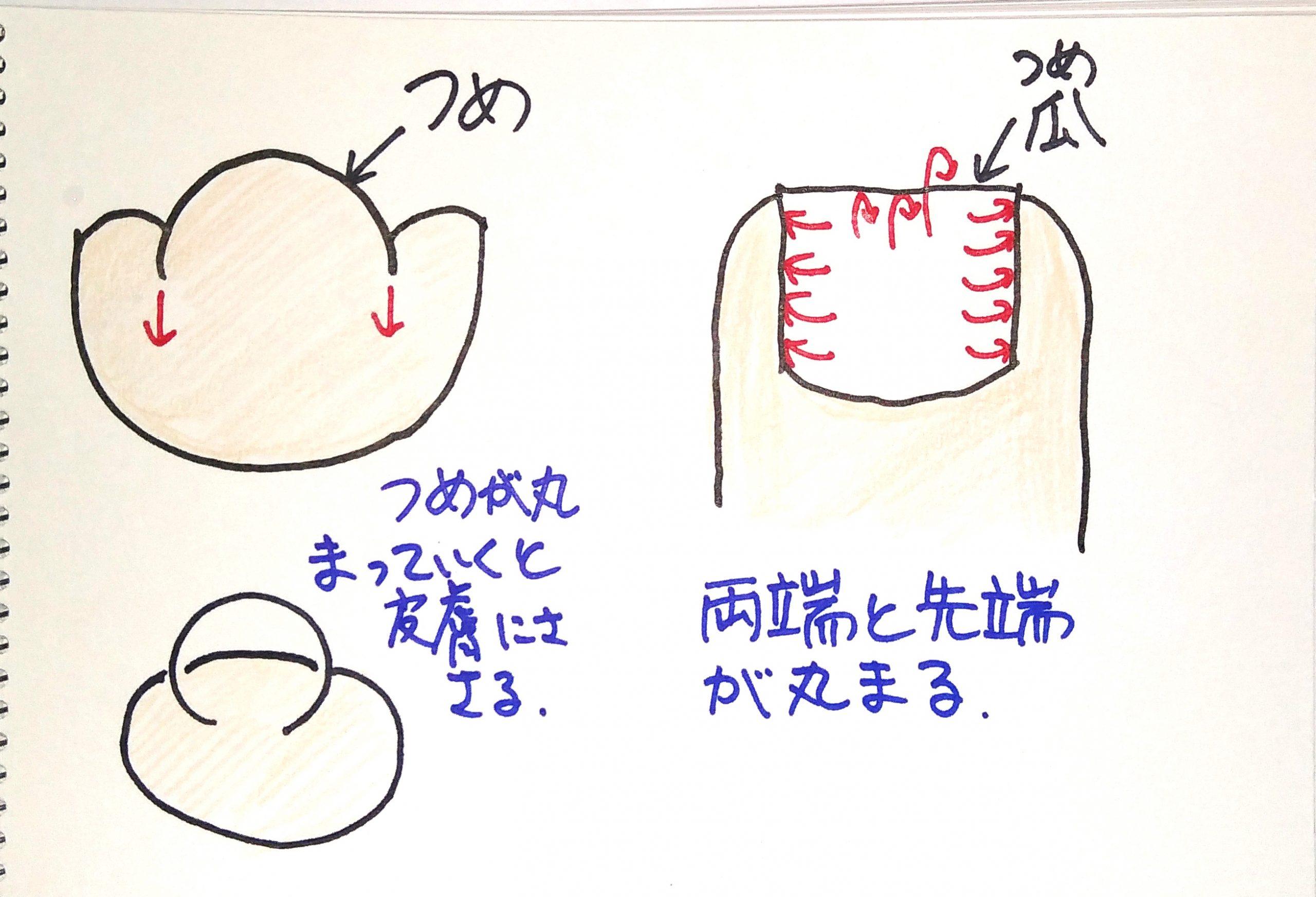 宮城県仙台市 巻き爪 陥入爪 靴合わせ オーダーメイドインソール 根本原因 解決 足のアーチサポート