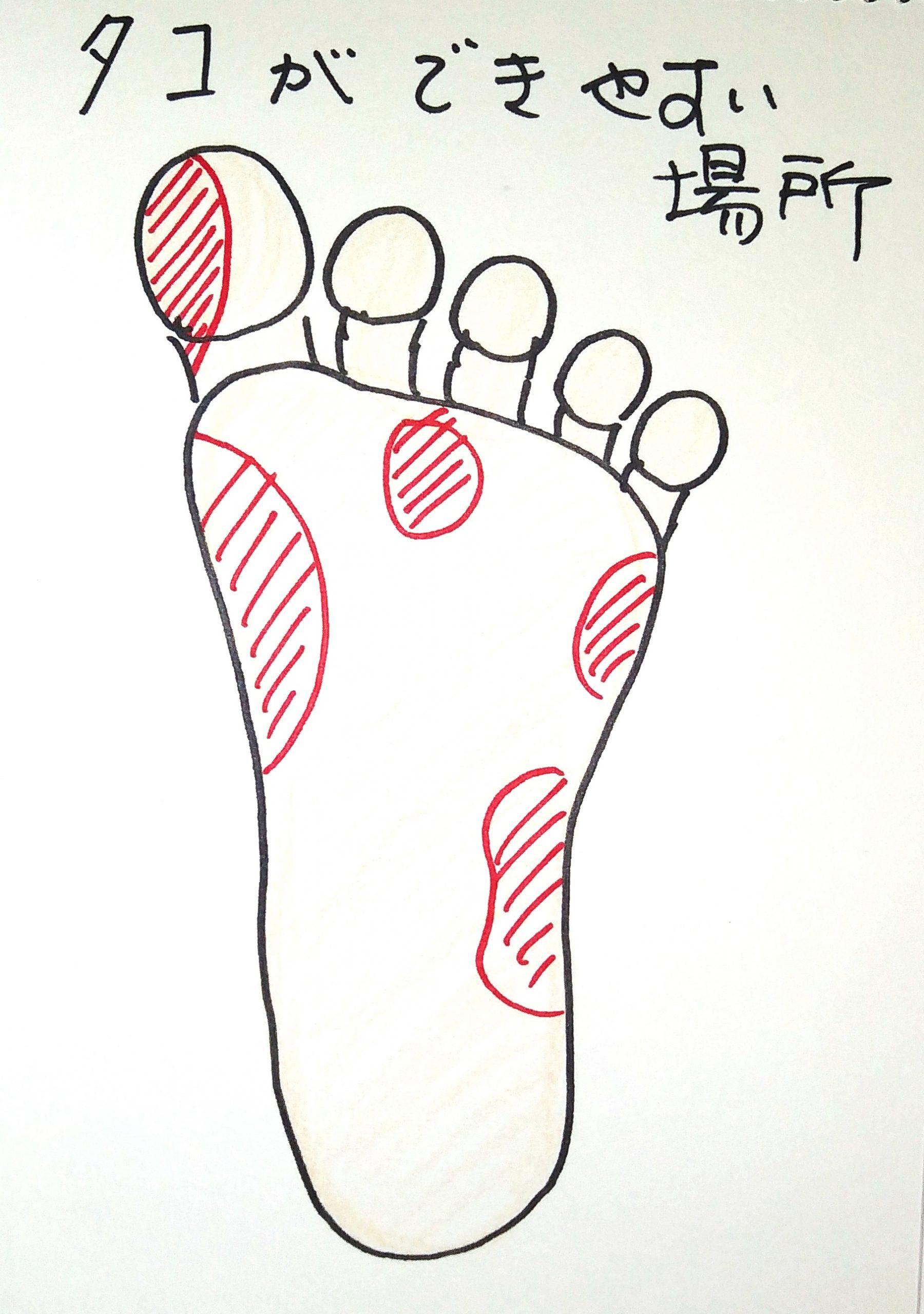 宮城県仙台市 タコ(胼胝) 靴合わせ オーダーメイドインソール 根本原因 解決 足のアーチサポート