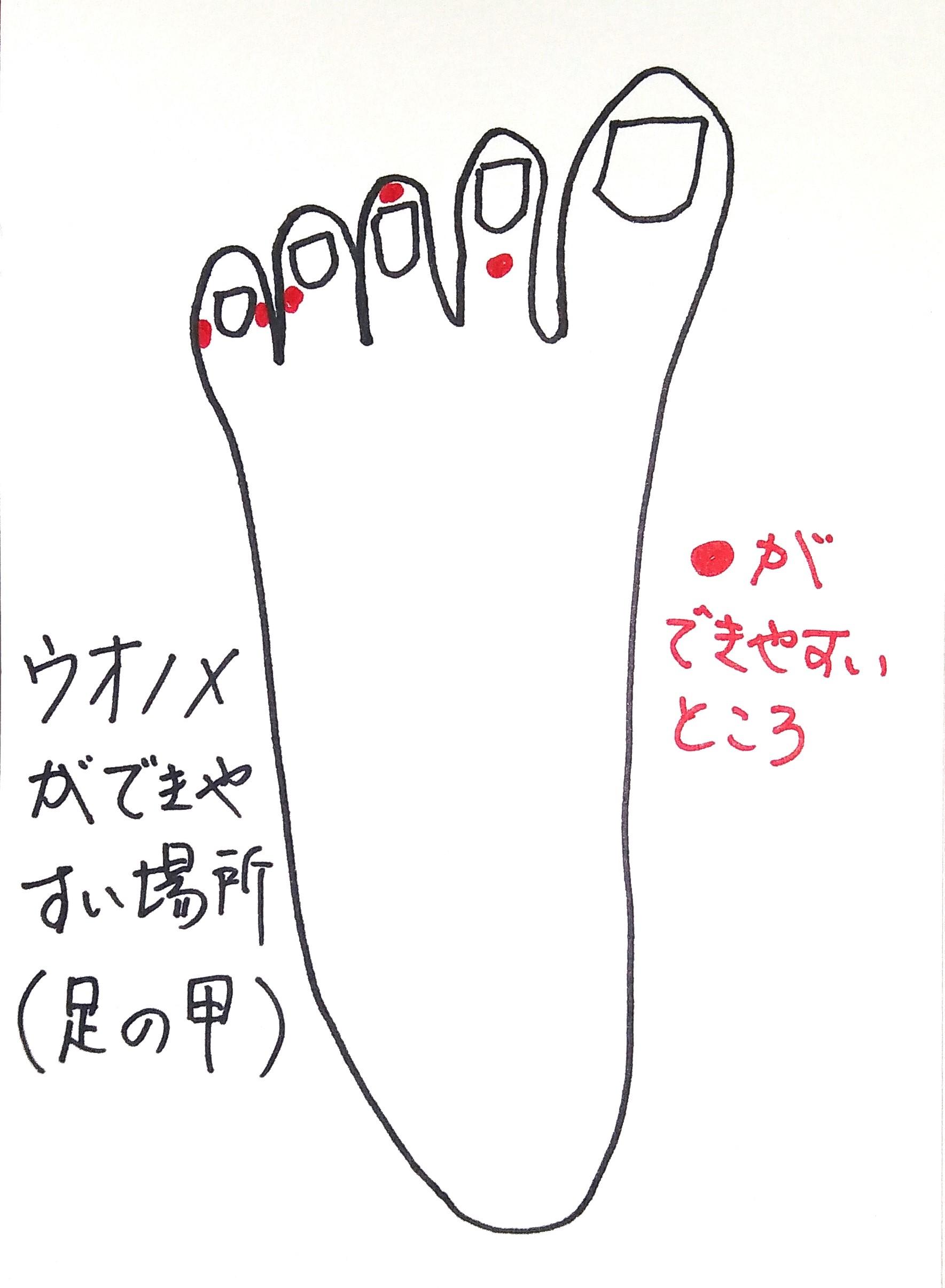 宮城県仙台市 ウオノメ(鶏眼)靴合わせ オーダーメイドインソール 根本原因 解決 足のアーチサポート