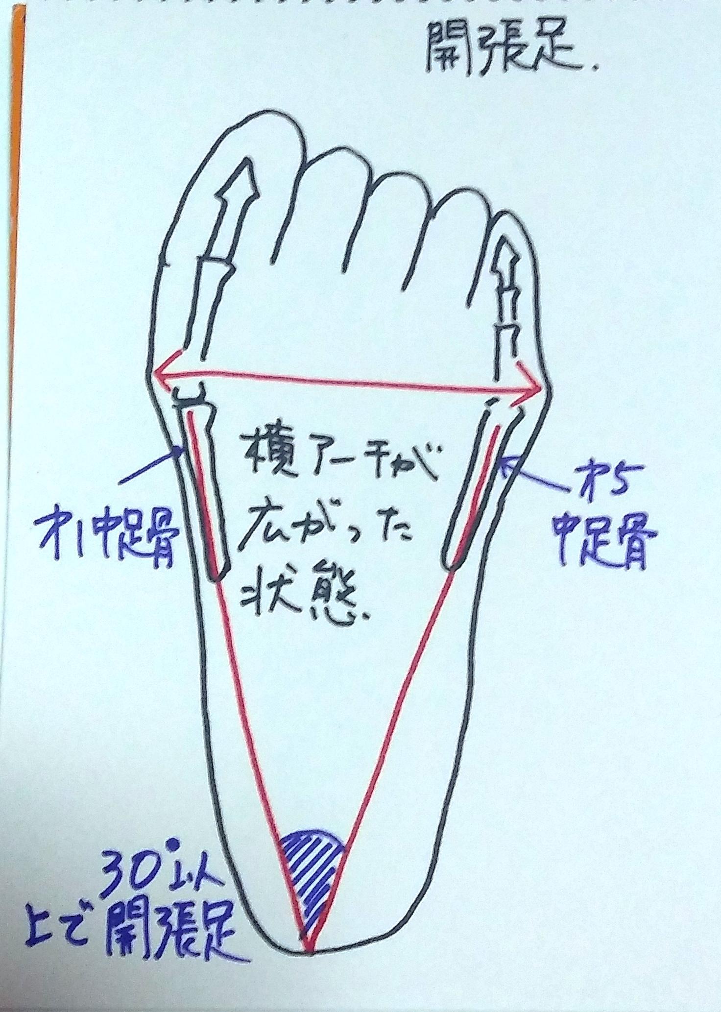 開帳足 宮城県仙台市 足 靴 トラブル 相談 靴合わせ オーダーメイドインソール