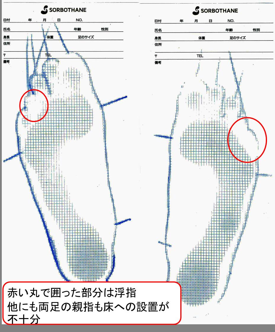 浮指 仙台 足の計測 足形測定 オーダーメイドインソール
